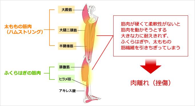 肉離れ(挫傷)のイラスト図