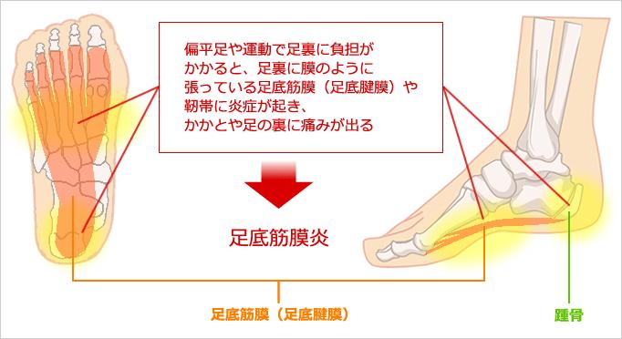 足底筋膜炎のイラスト図