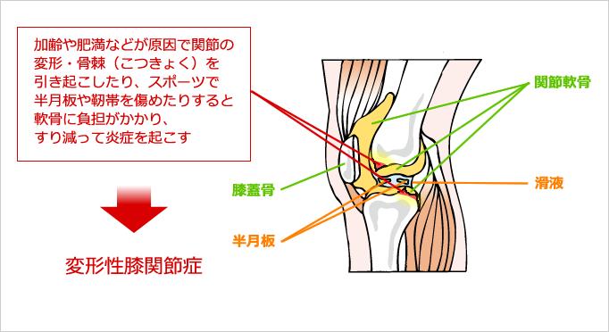 変形性膝関節症の図