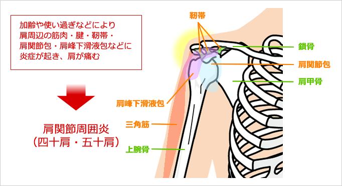 肩関節周囲炎(四十肩・五十肩)の図