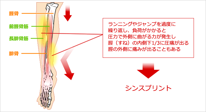 シンスプリントのイラスト図